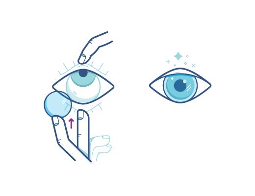 镜片接触眼球表面时视线可以往上看