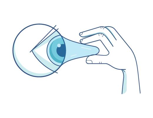 隐形眼镜会不会粘在眼球上?